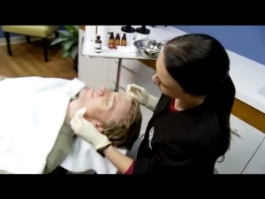 Watch Treating Acne Video