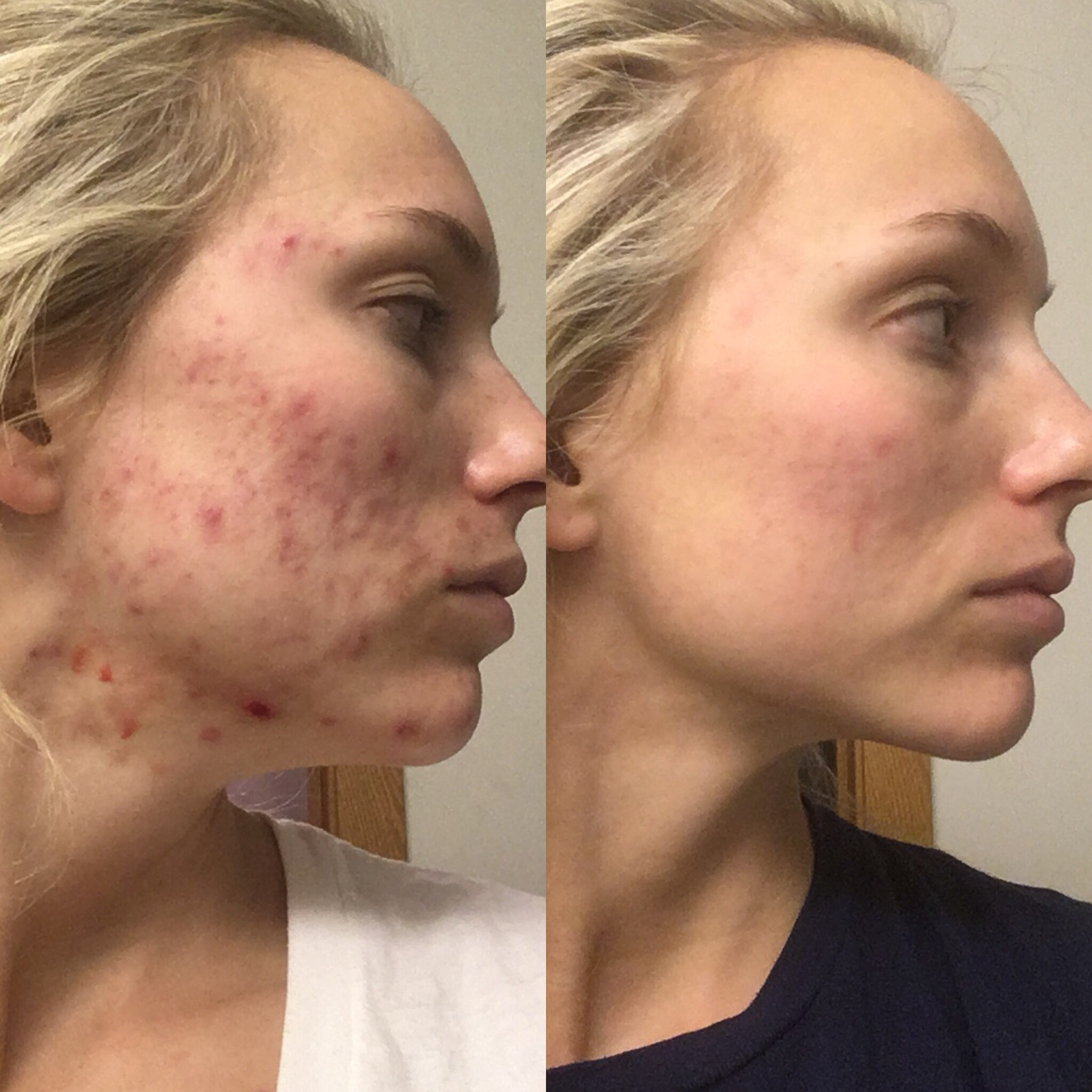 Luminous Beauty Client Before & After Acne Treatment with Peels and Skin Care
