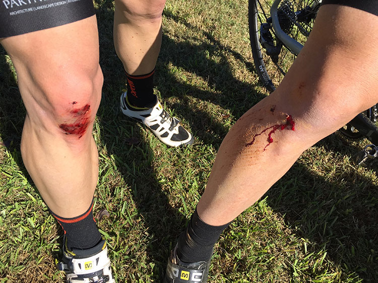 Fast, twisty course = blood, sweat and tears. Well, just blood.