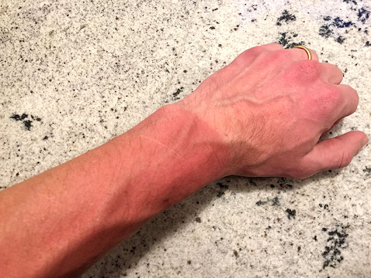 """""""Bro, why is your hand all pale but your arms are all sunburned?"""""""