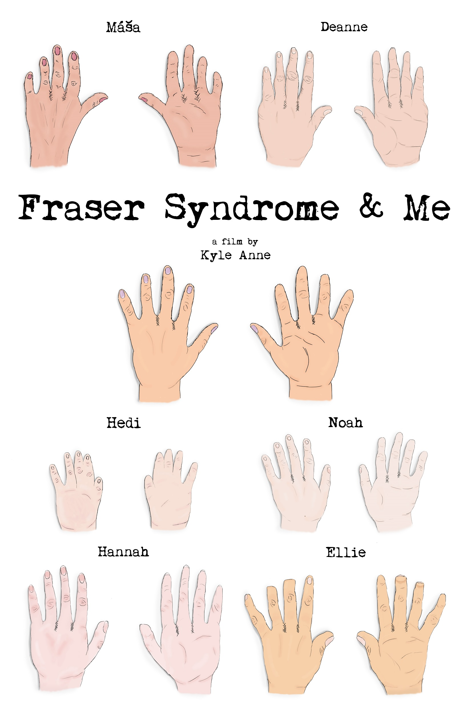 Fraser Syndrome & Me poster (Art Credit: Rachel Walters)