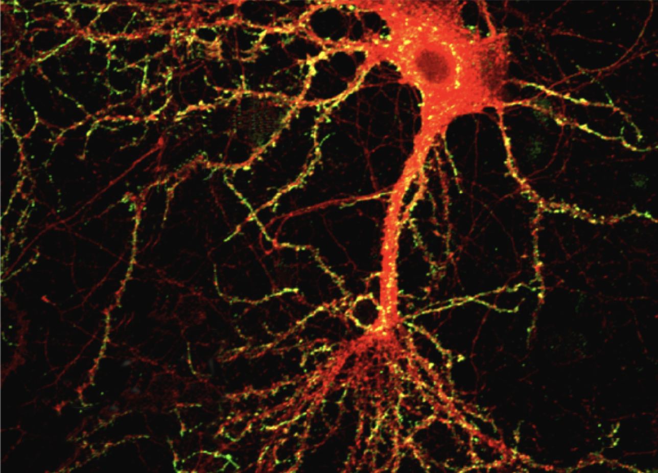 Image depicts a mature hippocampal neuron (red) and toxic amyloid-beta oligomers (yellow) bound to dendritic spines. Lacor et al., 2004.