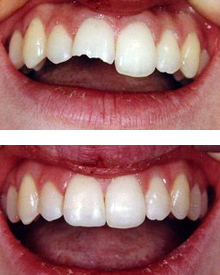 Dental restoration due to trauma.