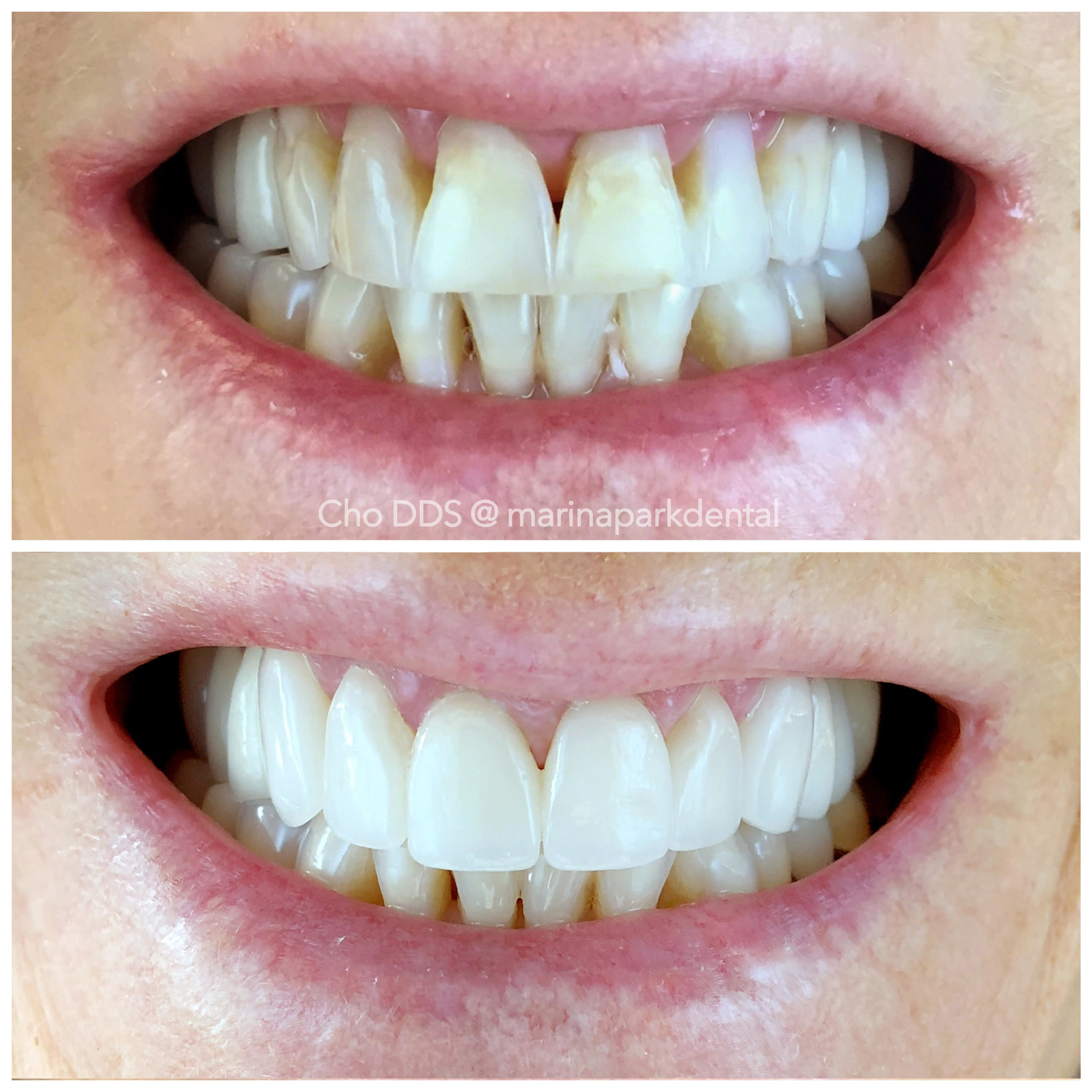 Esthetic Veneers - Six unit of veneers helped to enhance this patient's smile by selecting a lighter shade of porcelain, shaping the crowns rounder to fill in voids where gum had receded. The combination of these elements gave the patient a more youthful and feminine look.