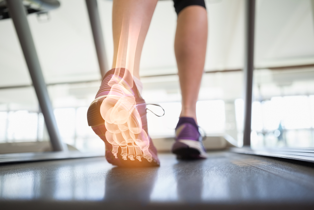 Sports injury analysis Highett Podiatry Melbourne