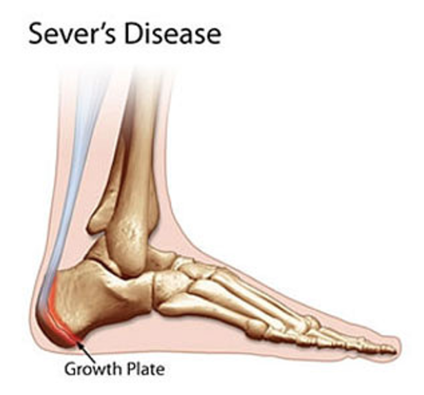 Sever's Disease Highett Podiatry