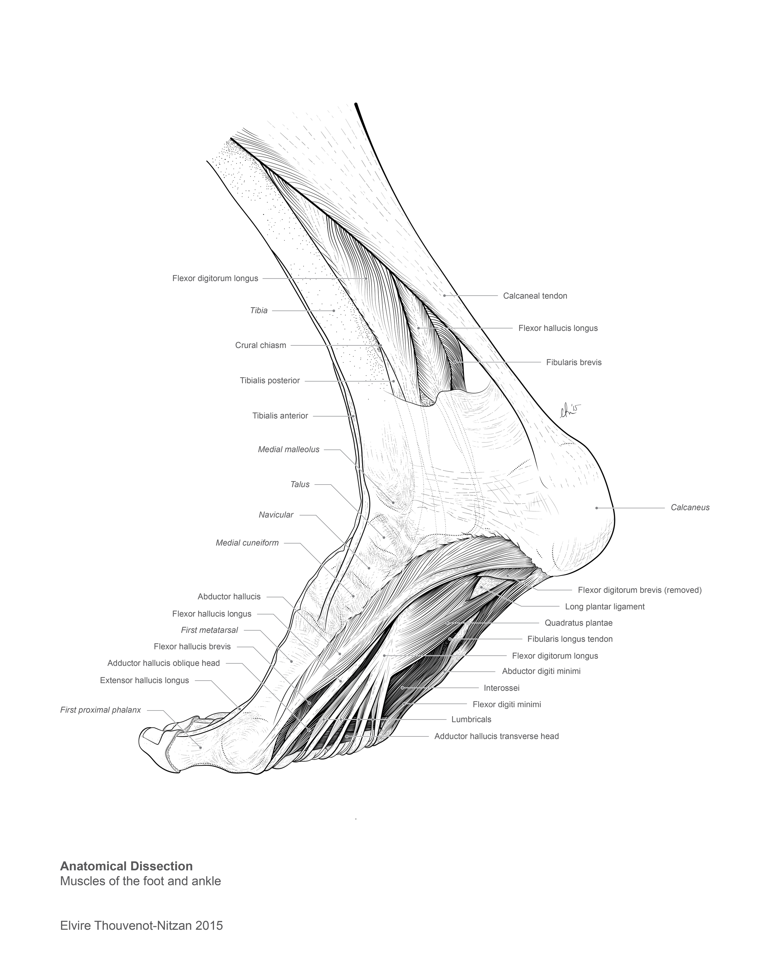 Elvire Thouvenot Dissection Drawing 2.png