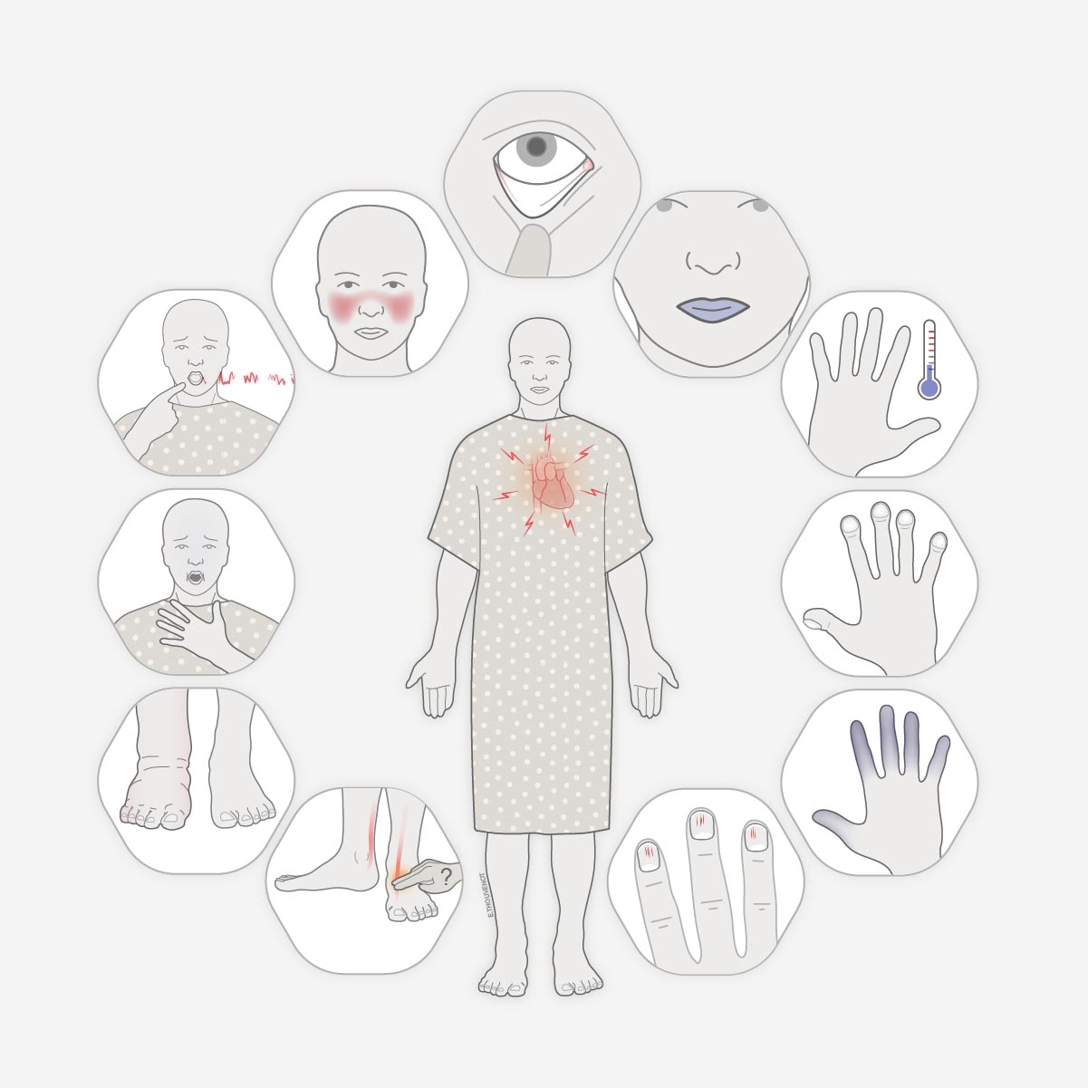 Teaching Clinical Skills: the Cardiac Exam   A series of e-learning guides designed to teach basic skill to health professional in under-resourced communities worldwide.