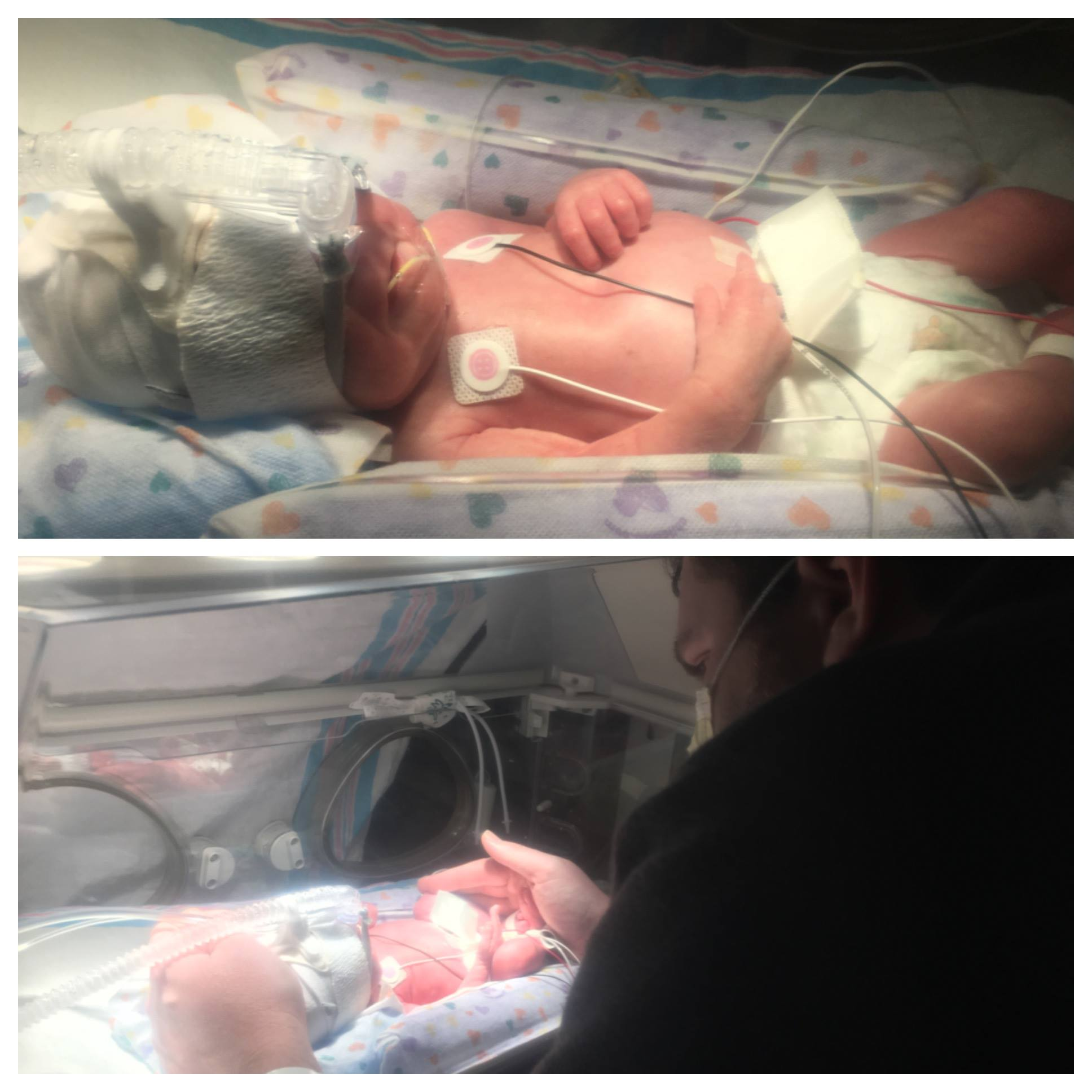 Ray hand-hugging X & X w/CPAP