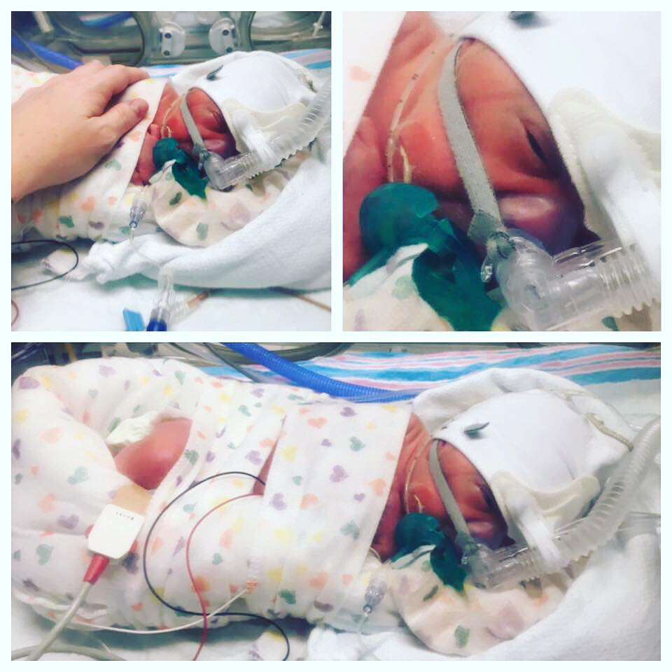 Isabella on CPAP, 5 days old