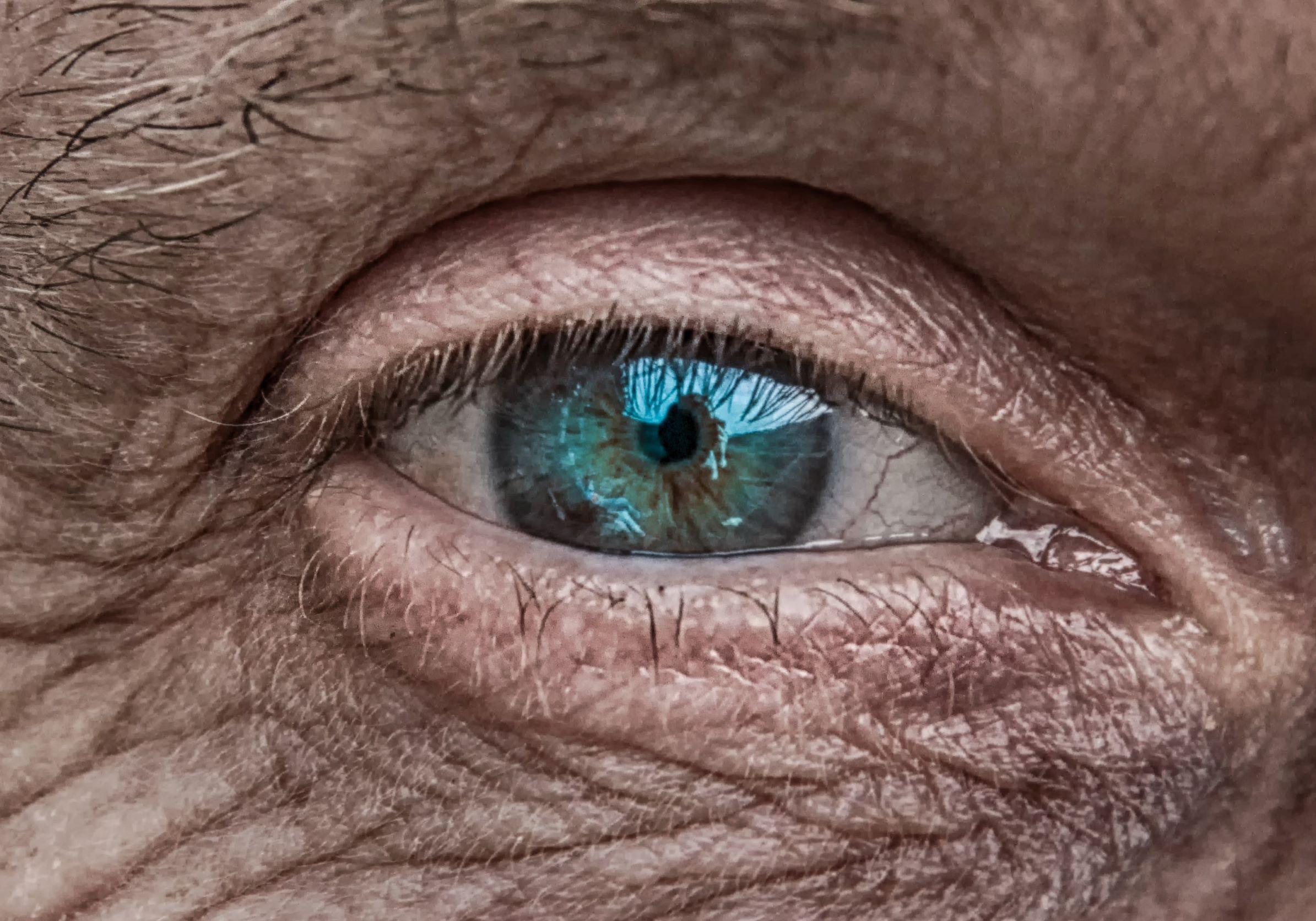 Mar 8 - Pic #2 - Eye.jpg