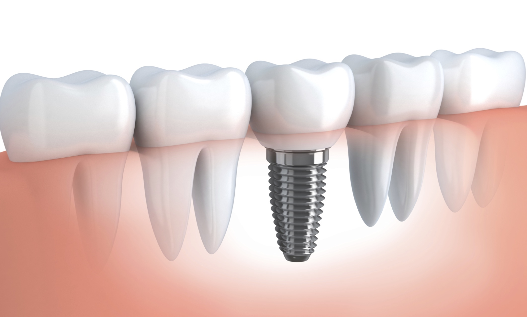 Town Center Dentistry has the best dental implant specialists in San Diego. Replace lost teeth due to injury, decay or gingivitis.