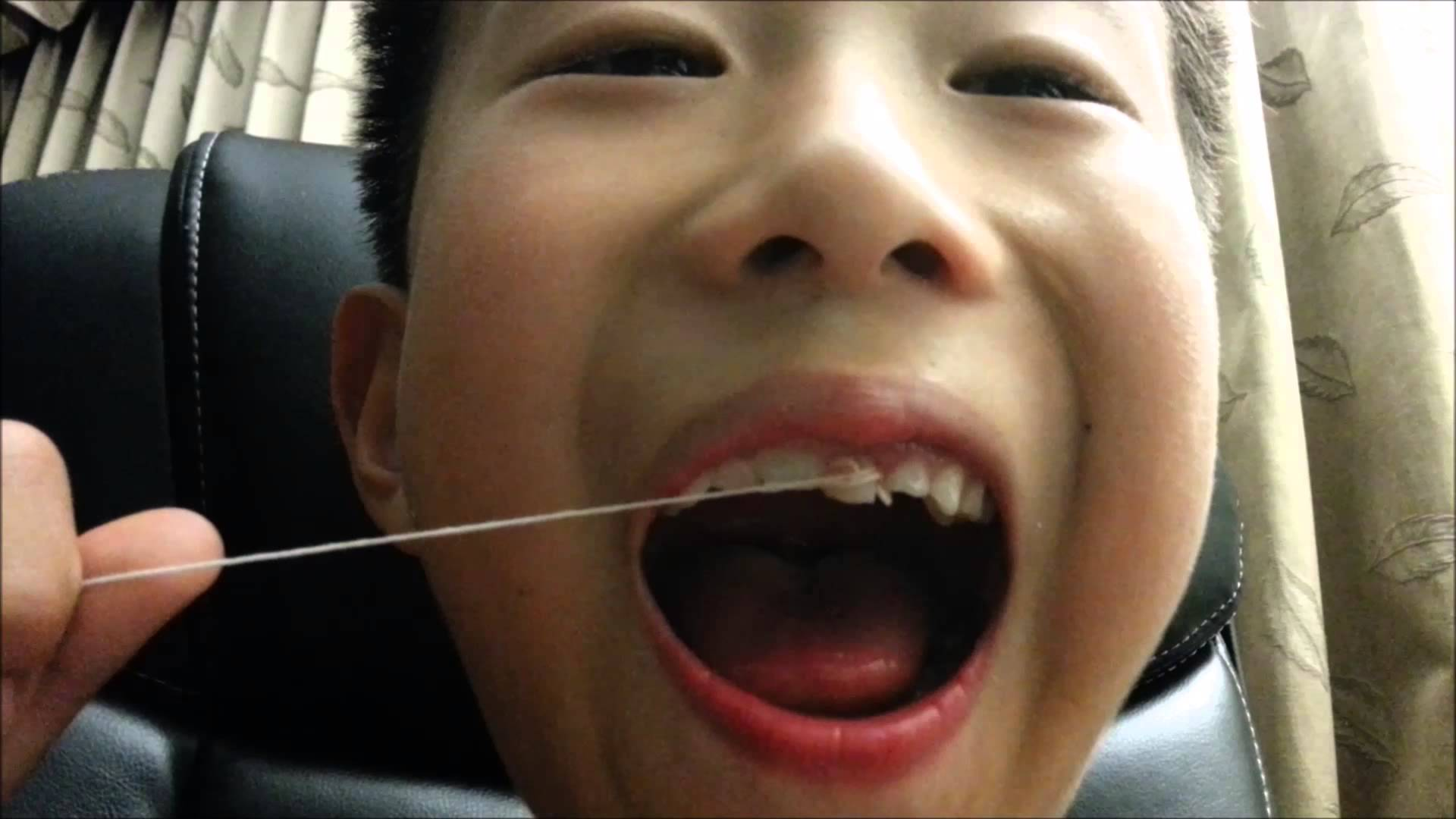 Town Center Dentistry offers fun tips on how to pull your children's teeth.