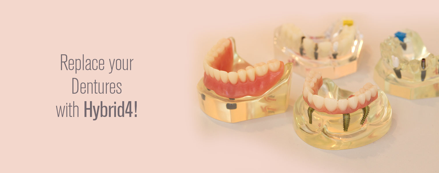 All-On-Four-San-Diego-Dentures-Town-Center-Dentistry
