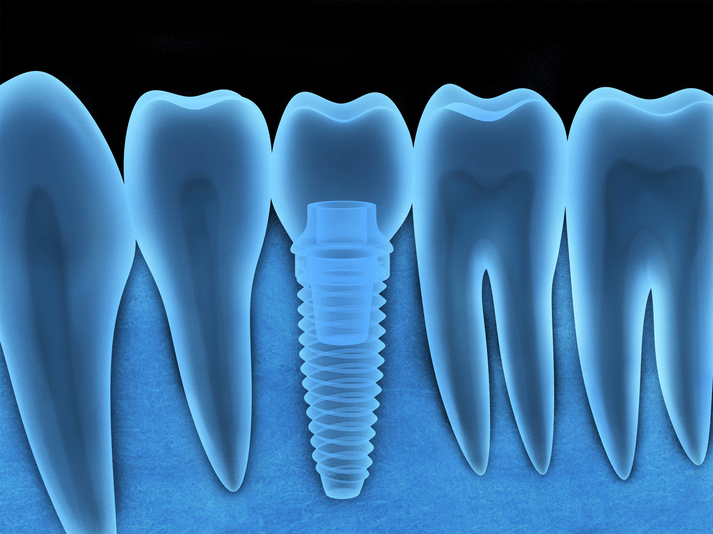 Town Center Dentistry in Rancho Bernardo offers dental implants. Learn the difference between dental implants and a dental bridge.