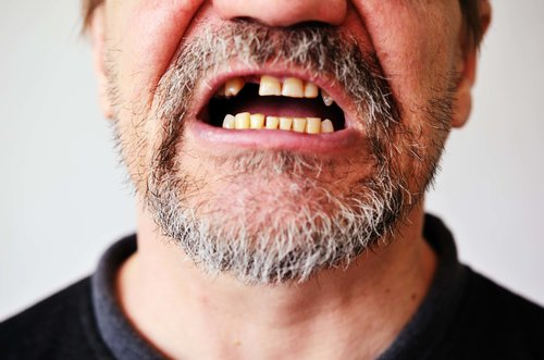 Signs you are losing a tooth in San Diego
