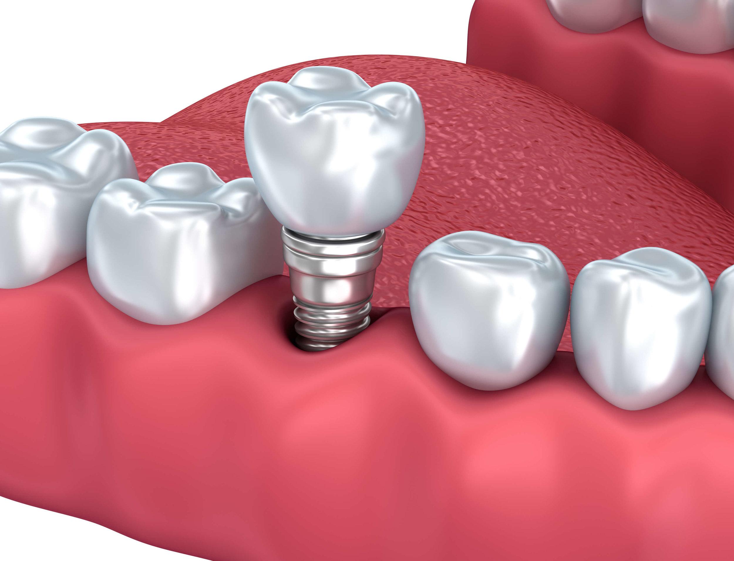 Dental Implant teeth replacement crowns San Diego