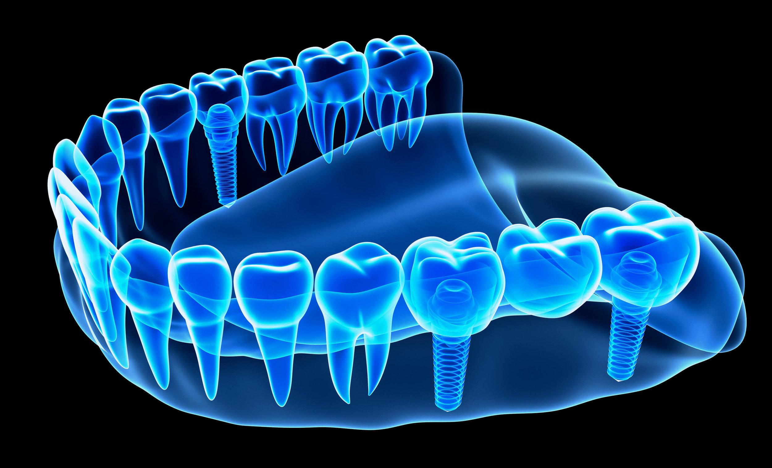Get dental implants from Town Center Dentistry Rancho Bernardo.