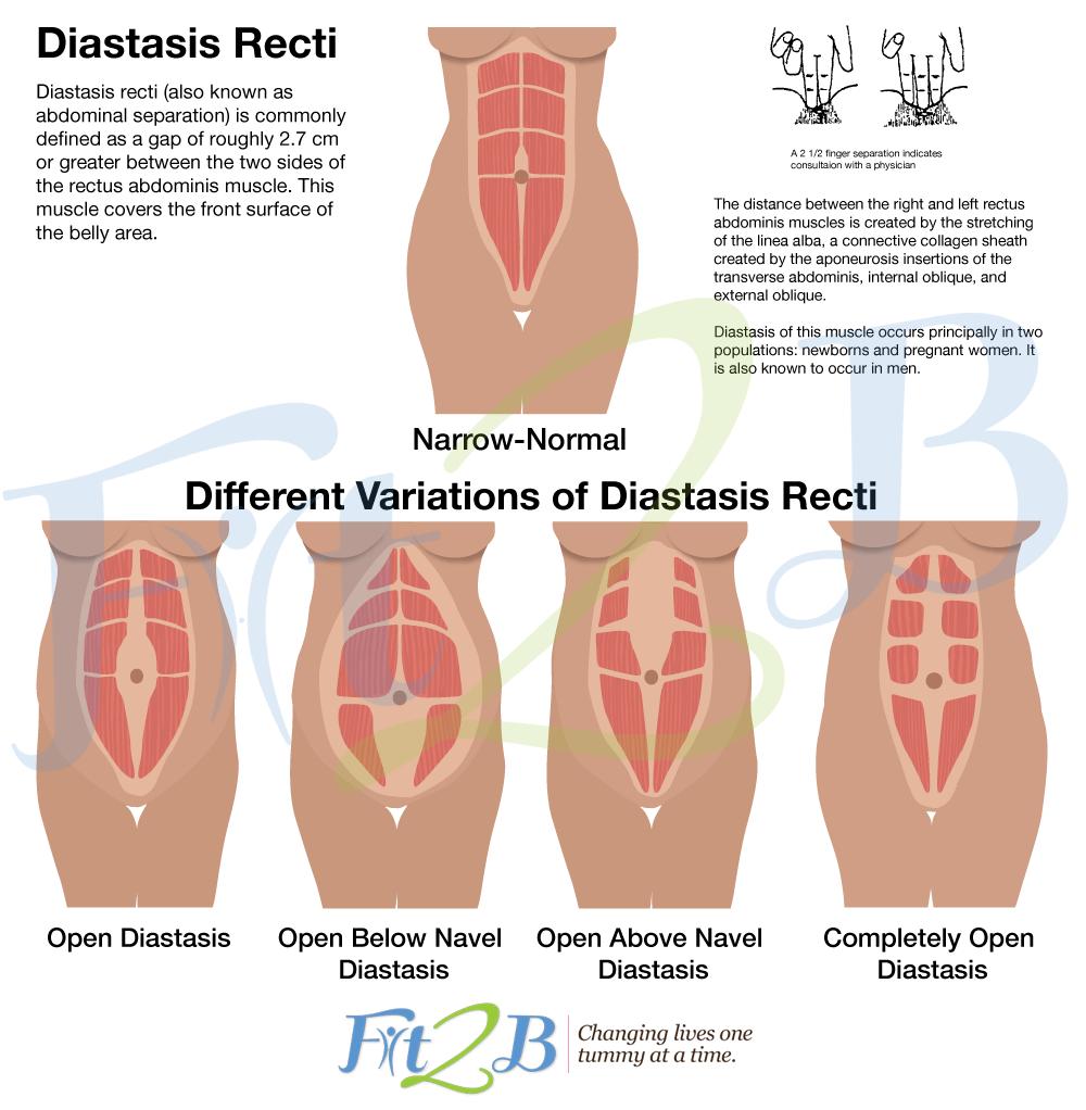 how to check for diastasis recti