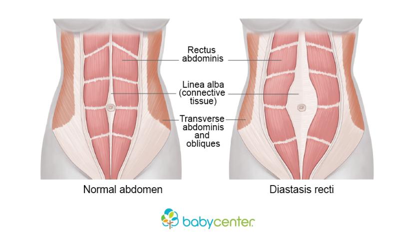 Diastasis Recti diagram courtesy of  Baby Center .