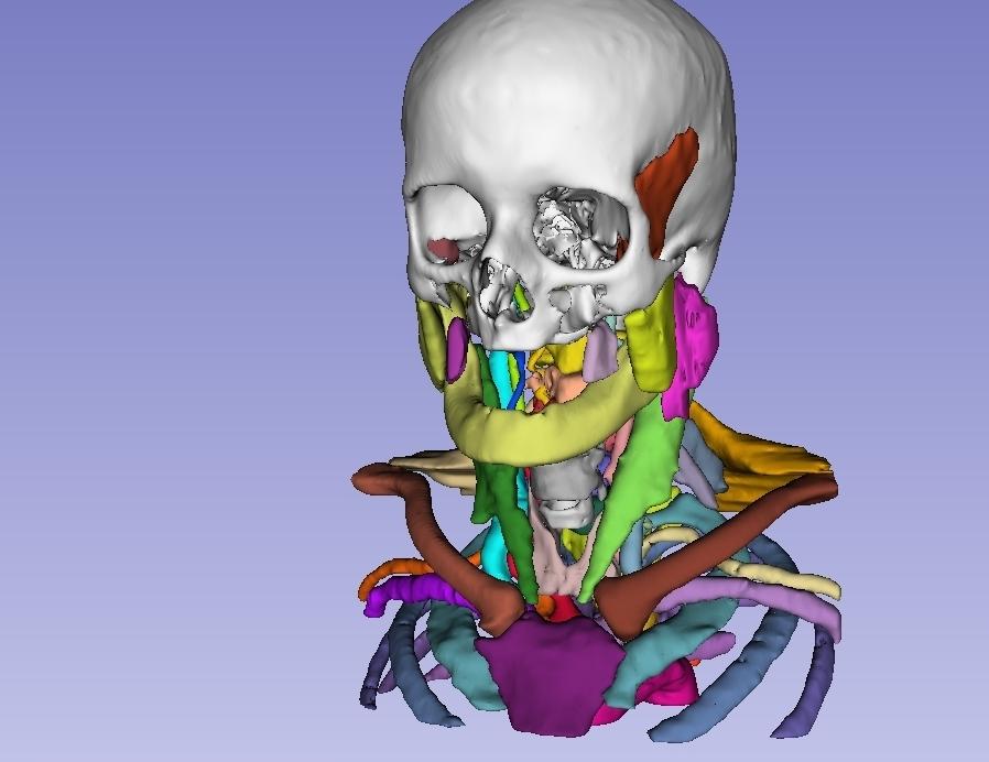 3D model slicer. Source: Jakab M. Kikinis R., slicer.org