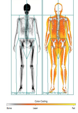 Dexa bone density.png