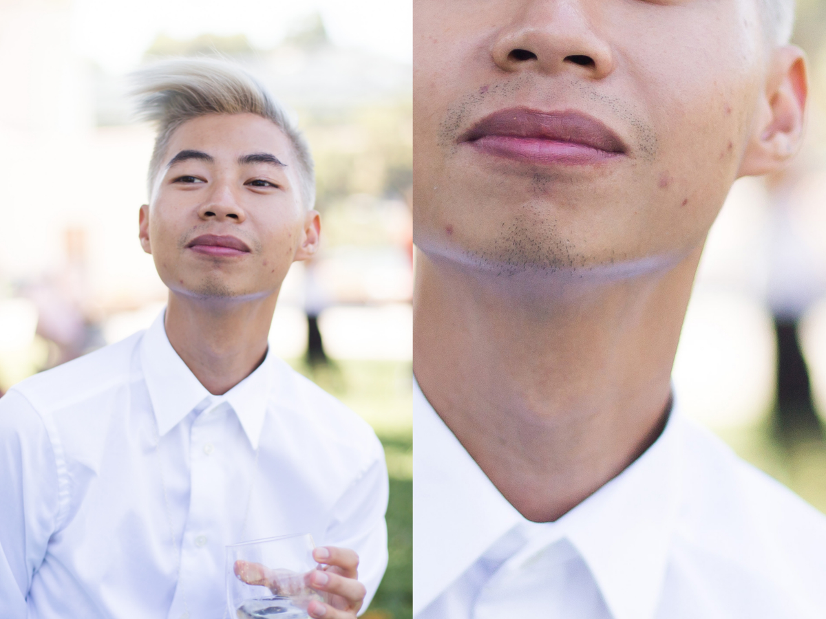 asian-male-acne-skincare-problems.jpg