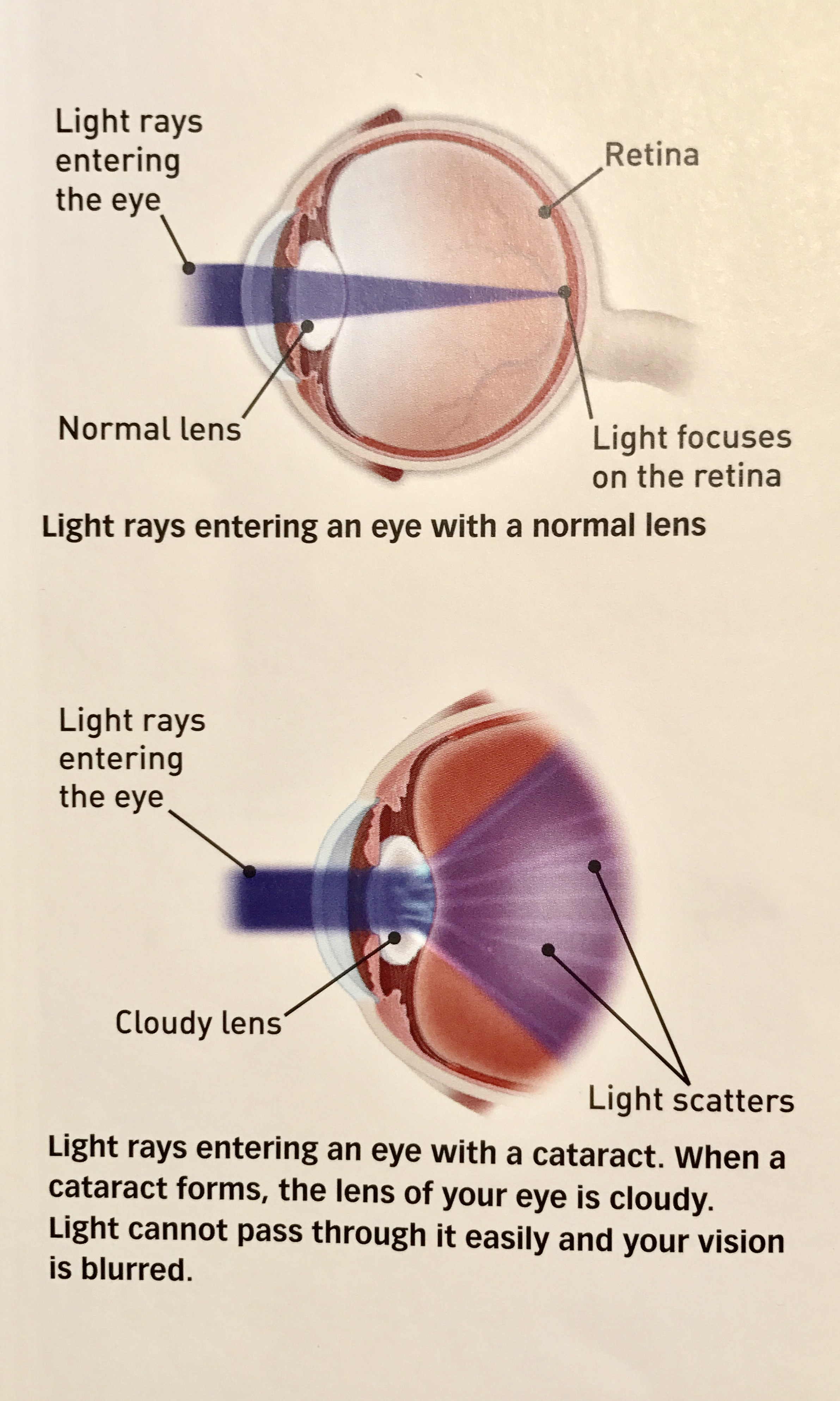 Credit: American Academy of Ophthalmology