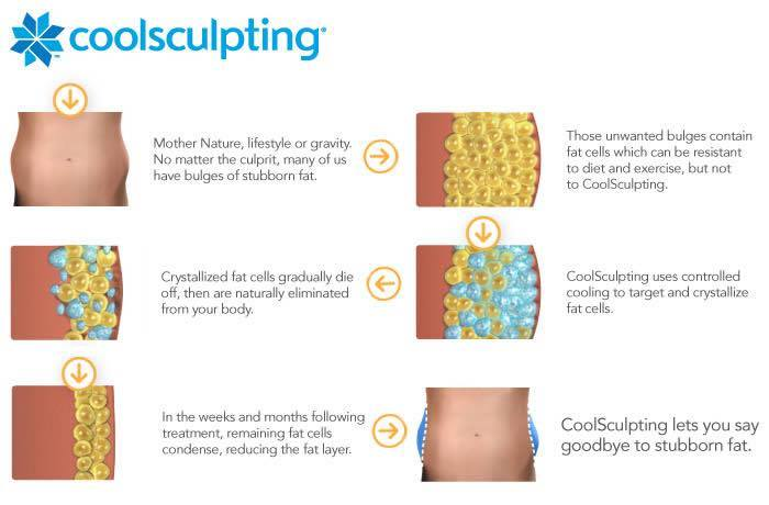 My CoolSculpting Experience by lifestyle blogger Destiney of MomCrushMonday
