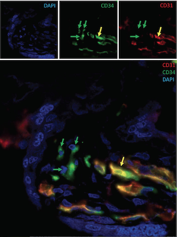 Hematopoietc stem cells (green arrows) and endothelial cells in the placenta (yellow arrow). From Raynaud et al. (under preparation)