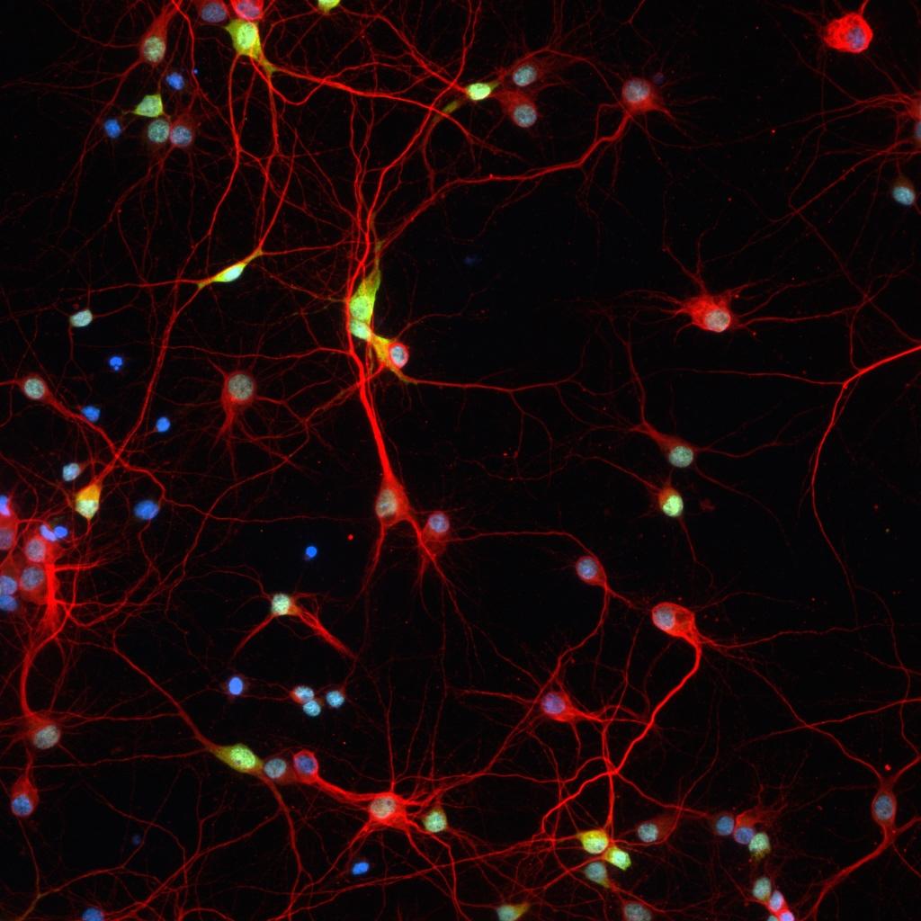 Neuronal Cultures 2.jpg