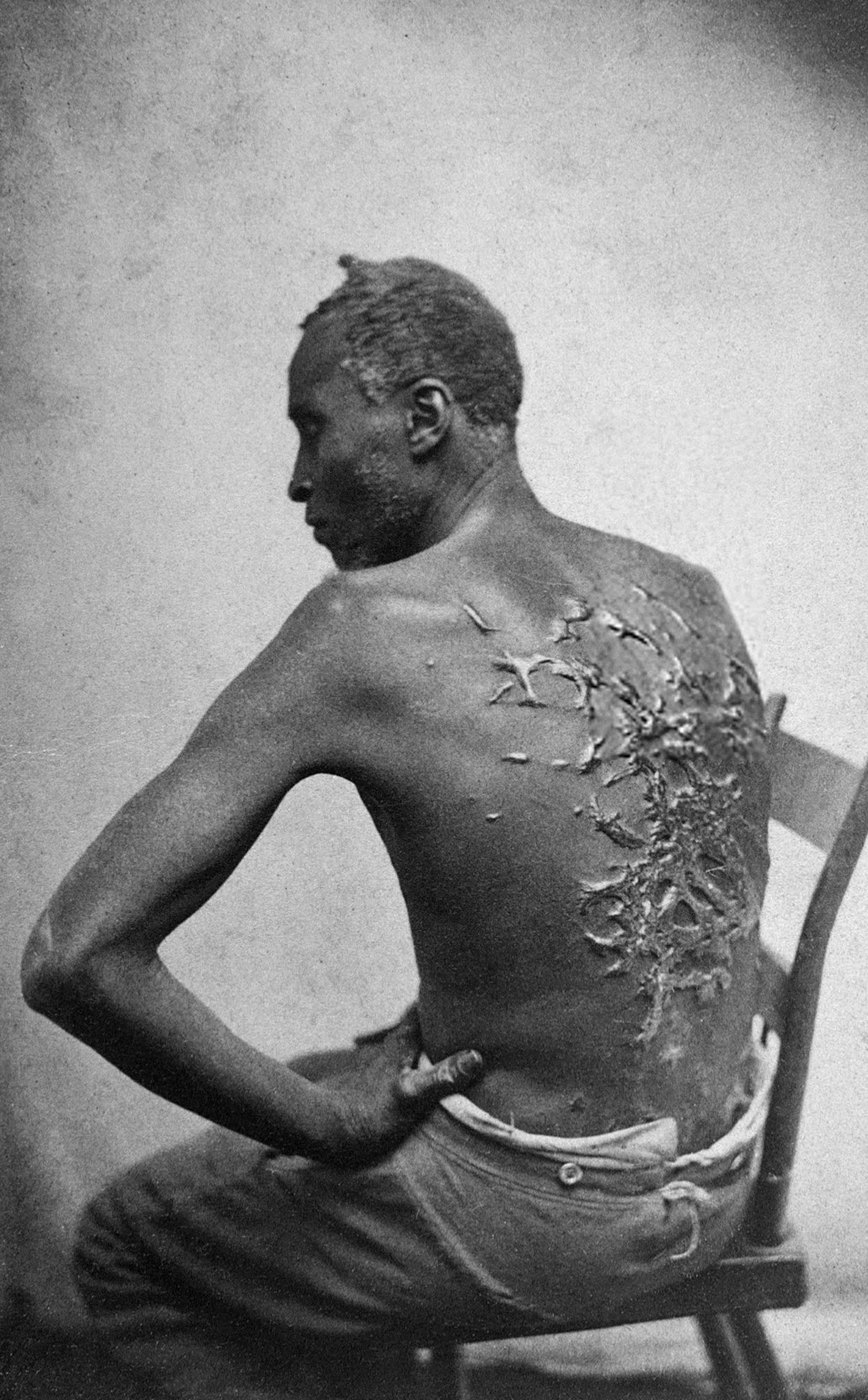 Scourged_back_by_McPherson_&_Oliver,_1863,_retouched.jpg