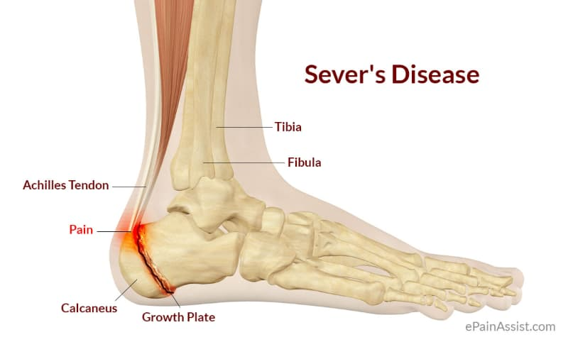 sever disease gold coast foot centres.jpg