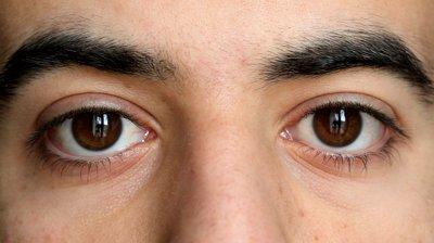 Eye Movement Desensitization And Reprocessing (EMDR)