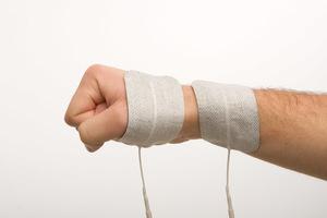 collies-fracture.jpg