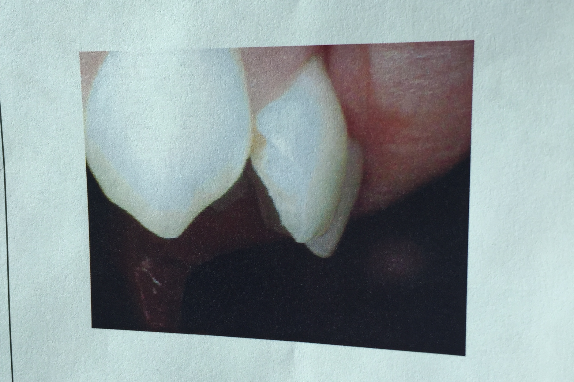 The dental damage of a piolet to the mouth.