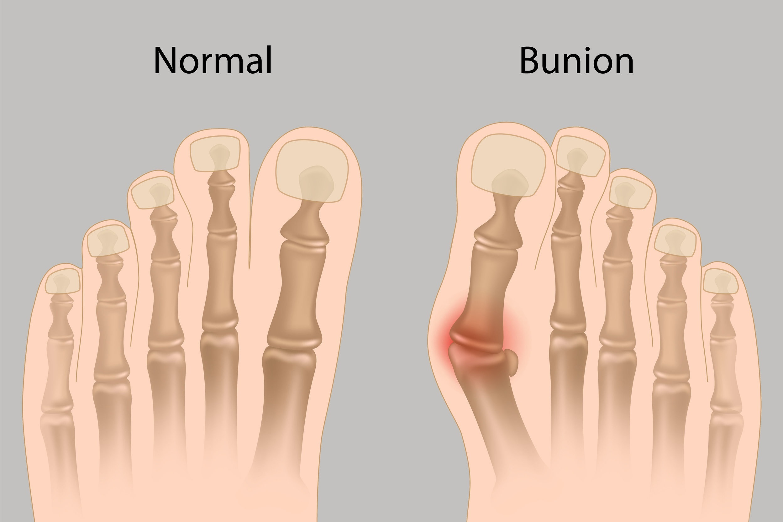 Newton Podiatrist treats bunions & hammertoes