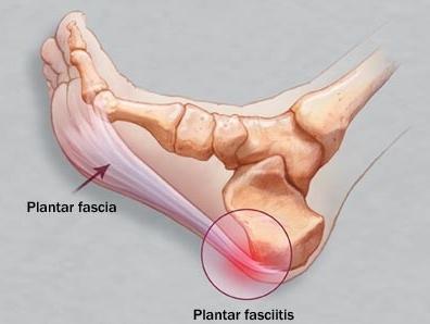fasciitis 1.jpg