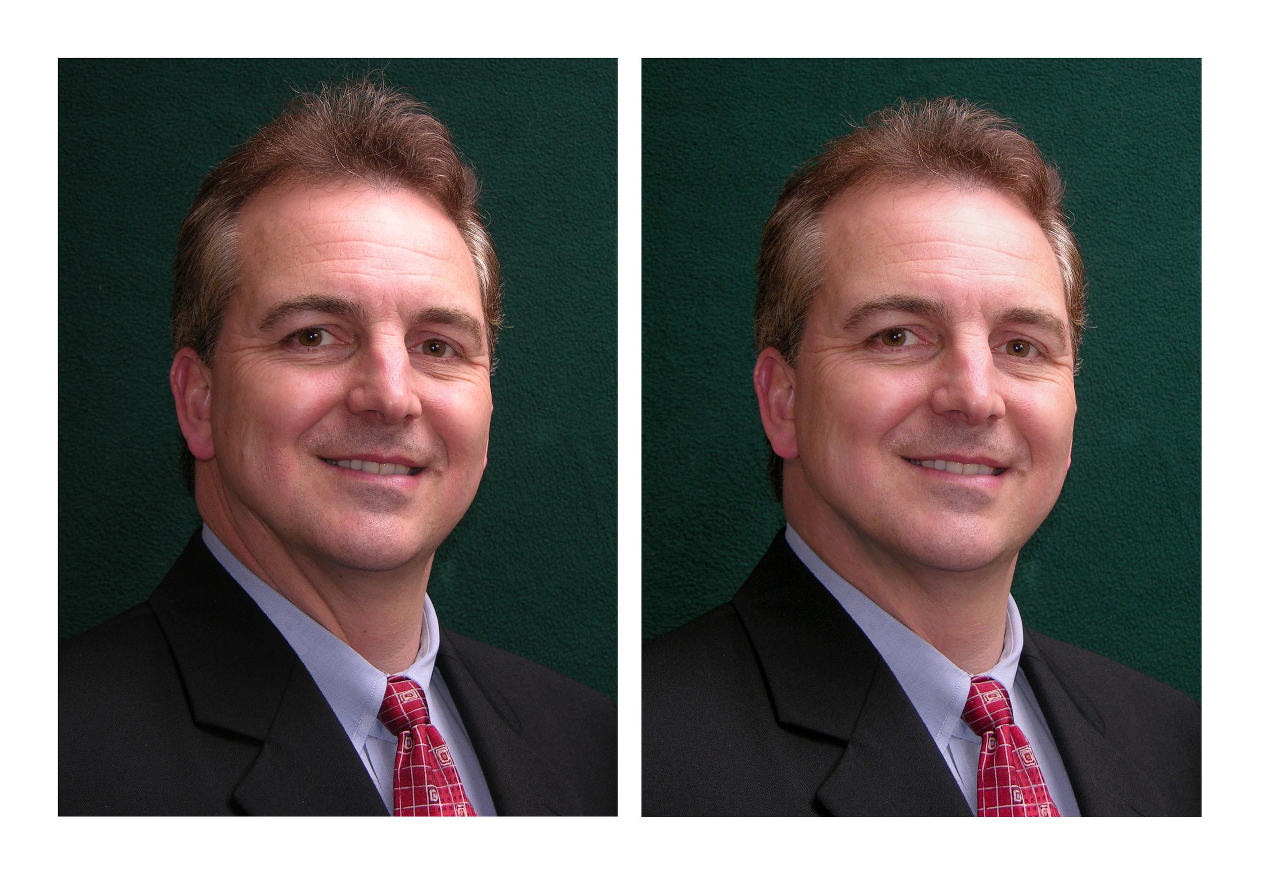Portrait Improvement