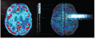 Drugs, the teen brain, addiction