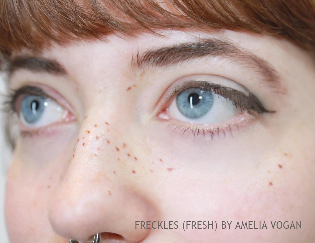 freckles 2.jpg
