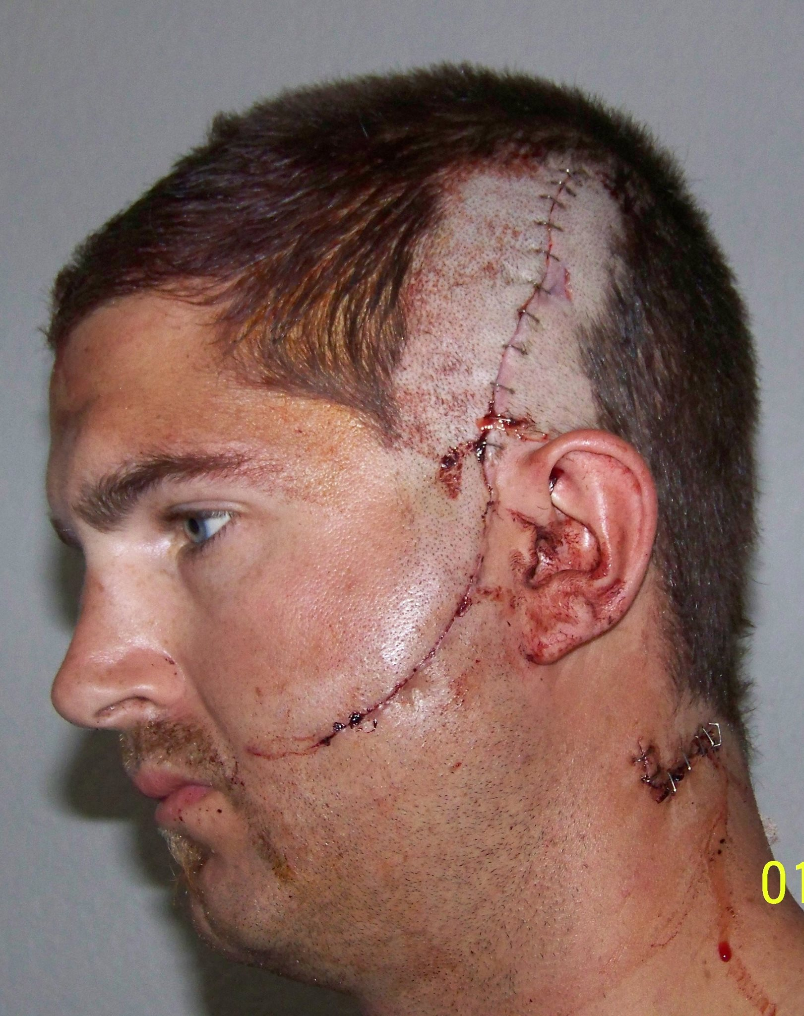 Tyson after being released from the hospital days after the stabbing
