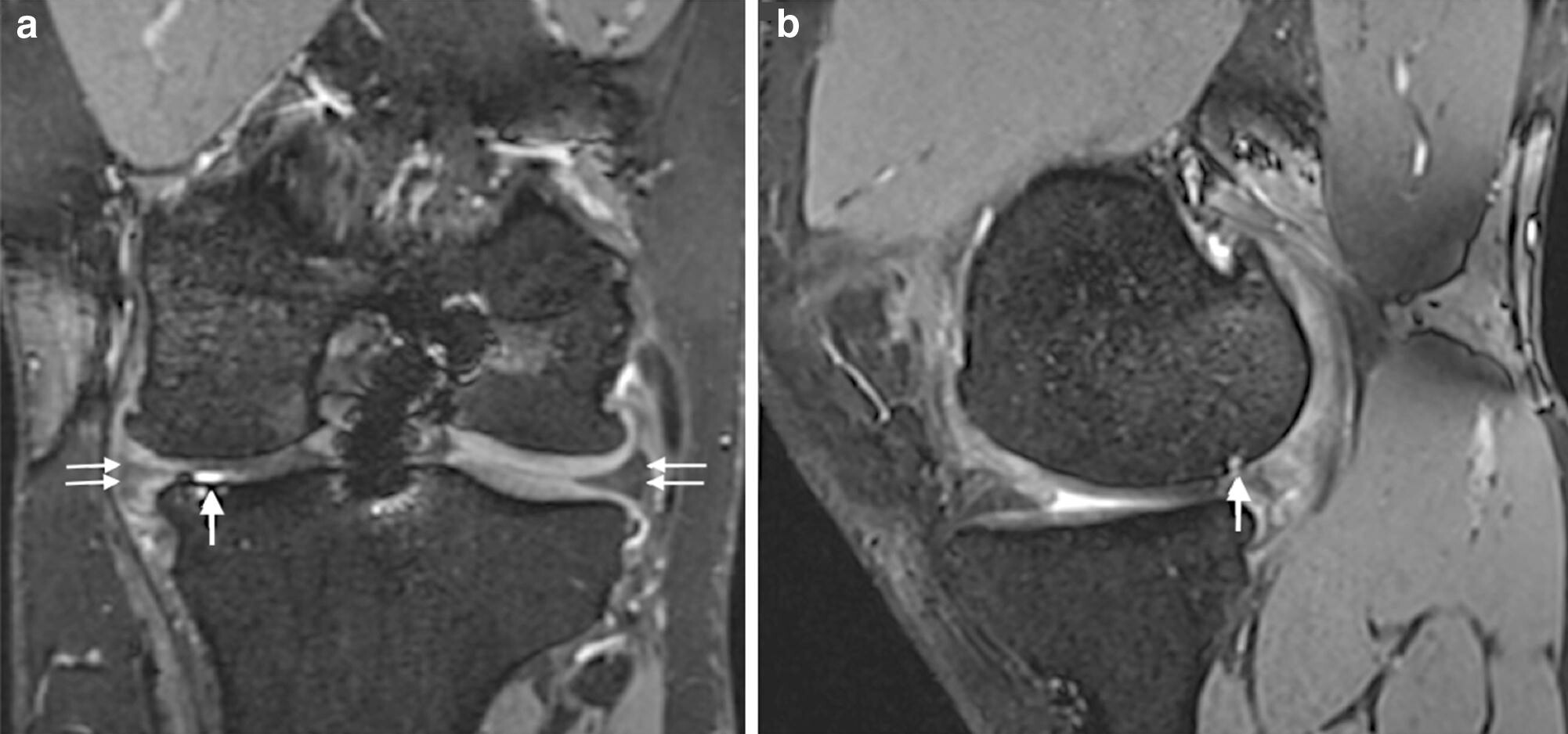 Coronal (a) and sagittal (b) reconstructions of 3D T2 True-FISP sequence. Left knee of a 30-year-old player 9years after ACLrevision surgery with combined partial medial meniscectomy. a Bilateral meniscal extrusion of ≥ 2mm (double arrows) resulting in a meniscus score of 4 on both sides. a, b Chondral grade 4 lesion to the medial femur condyle and tibial plateau (thick arrows), resulting in a medial tibiofemoral cartilage score of 32. b Probable chronic postero-medial subluxation of the medial femur condyle.