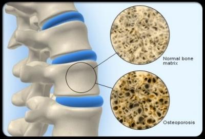 Decreased bone mineral density of Osteoporosis