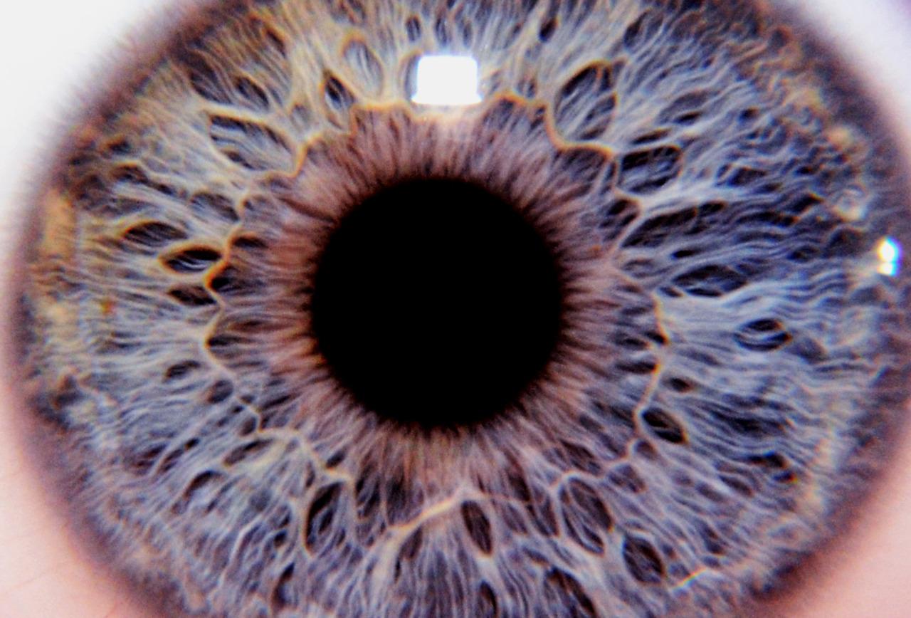 My Eye. (right)