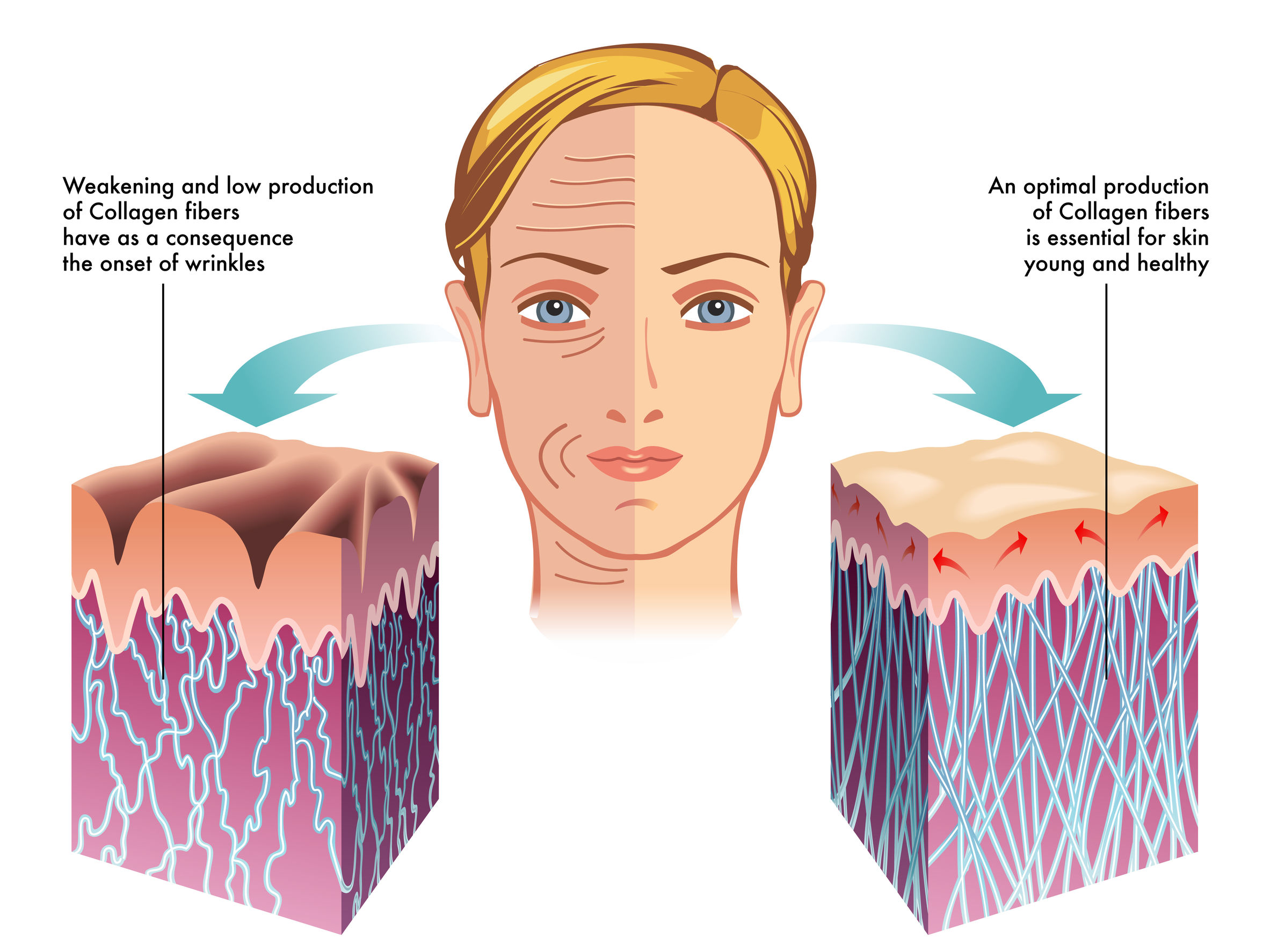 The image on the left is what happens to skin as we age. The image on the right is what we are trying to achieve with these skin care services.