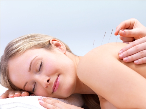 acupuncture-back2.jpg