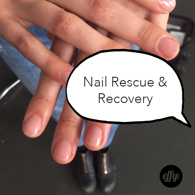 nail rescue and recovery.jpg