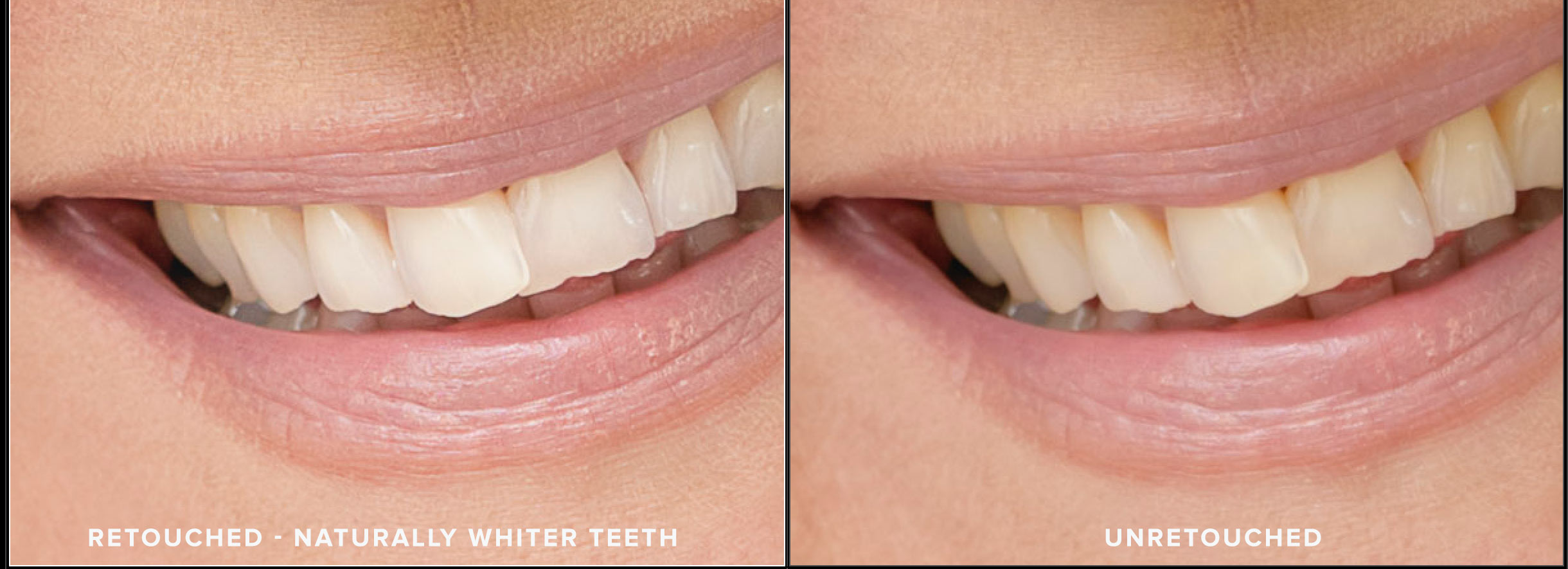 Image of retouched and unretouched teeth. Photo by N. Lalor Photography in Greenwich, Connecticut.