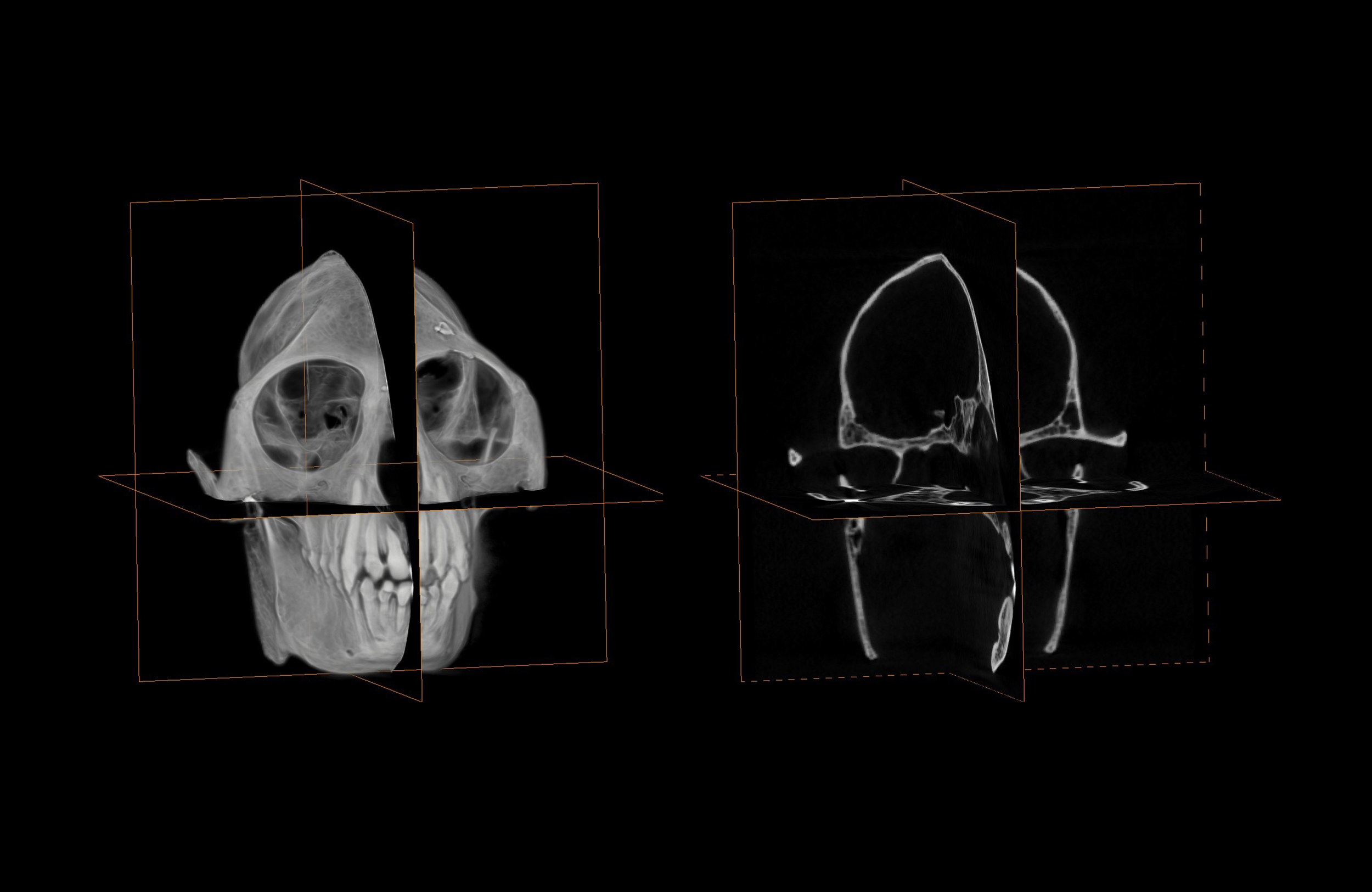 CT scan of skull and associated tomographs